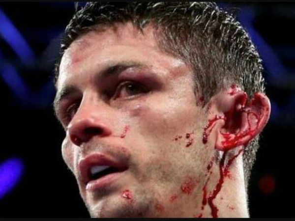 A Boxer Teared Opponent Ear Real Time Boxing Match