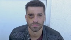 European Boxing Champion Sam Maxwell Punched His Own Eyes